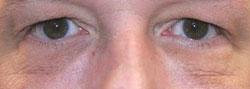 eyes6.jpg