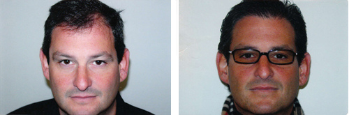 hairtransplantbeforeafter1.jpg