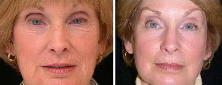laser-resurfacing-before-and-after2.jpg