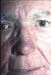 rhinophyma_rosacea_after_150.jpg