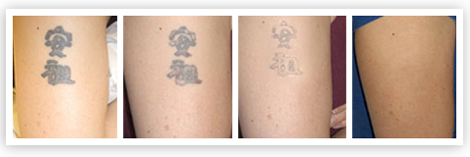 tattooremovalbeforemiddleafter.jpg
